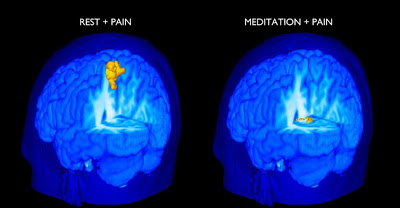 Small Study Shows: Meditation Proves Better Than Pills for Chronic Pain