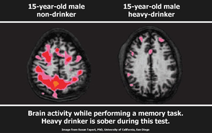 This Is What Alcohol Really Does To Your Brain The Mind